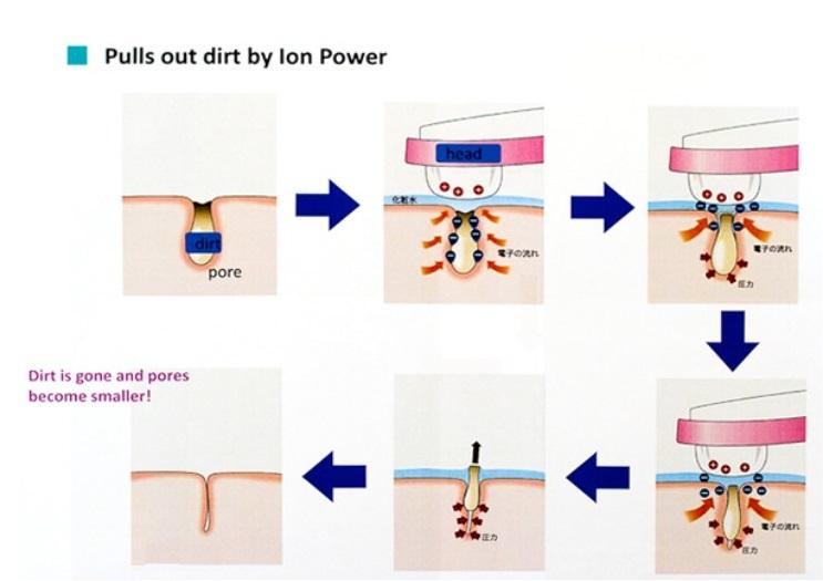 Các chất bẩn còn sót lại trong lỗ chân lông được lấy hoàn toàn ra ngoài