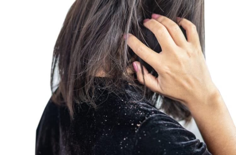Da khô là một nguyên nhân gây ra gàu