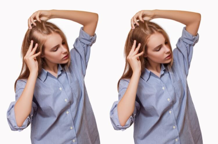 Khi tóc rụng quá nhiều bạn cần xem xét nguyên nhân để có hướng điều trị hiệu quả