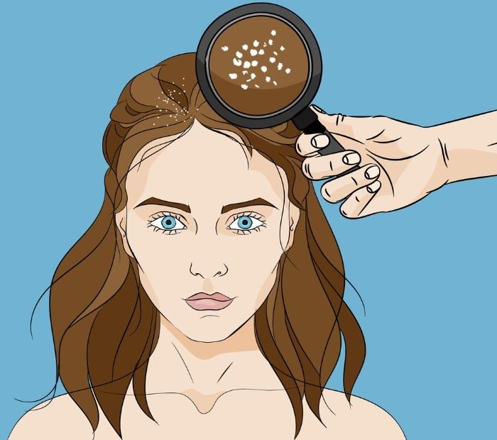 Nấm da dầu, bệnh vảy nến là tình trạng gàu rất nặng
