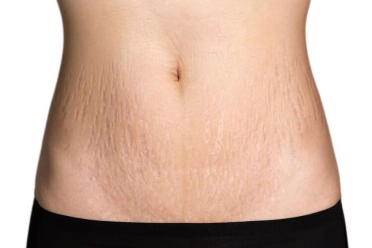 Rạn da thường là do da mất đi sự đàn hồi làm phá vỡ các liên kết collagen ở lớp hạ bì