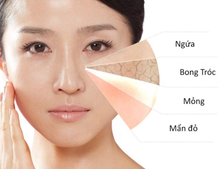 Da nhạy cảm đòi hỏi việc chăm sóc khó khăn hơn rất nhiều so với các loại da thông thường