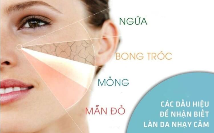 Làn da nhạy cảm cần một chế độ chăm sóc đặc biêt